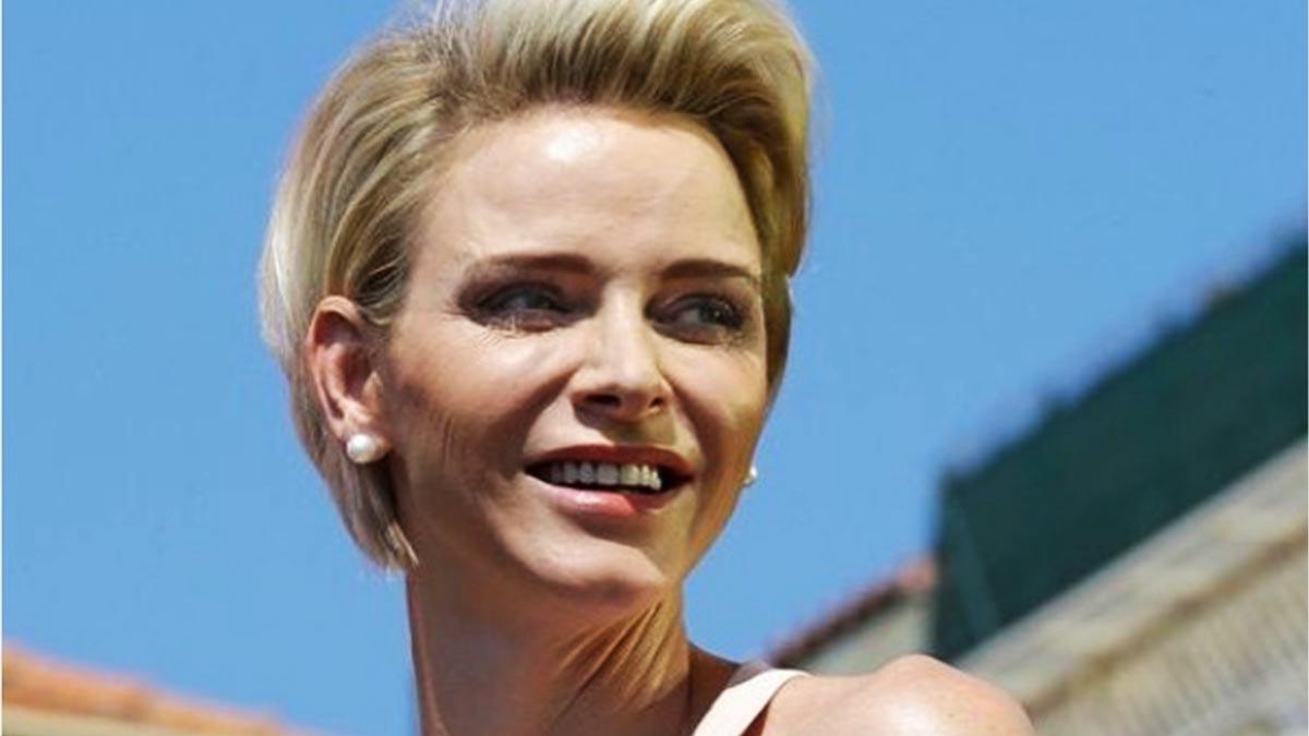 Charlène de Monaco : son impressionnante opération de la mâchoire dévoilée