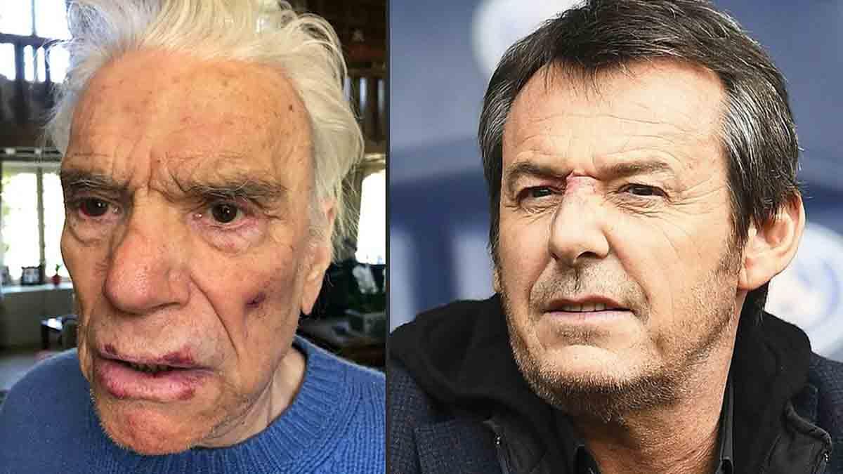 Mort de Bernard Tapie vibrant hommage de Jean-Luc Reichmann sa triste fin de vie